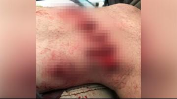 Man bitten by shark near Crystal Beach: 'He wanted to taste me'