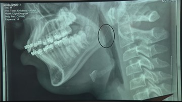 Boy swallows metal piece left from wire grill brush