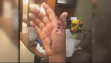 Tennessee woman almost loses arm from flesh-eating bacteria contracted at nail salon