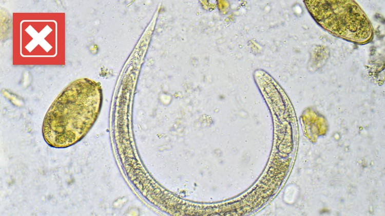 VERIFY: No, healthy Americans do not need to take deworming medicine