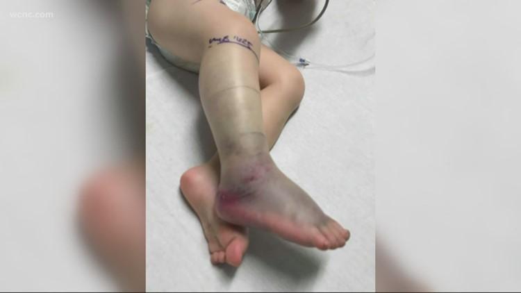 South Carolina 2-year-old bitten by copperhead snake