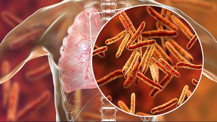 Health officials recently told school administrators a small number of students, staff, and faculty may have been exposed to someone with active TB.
